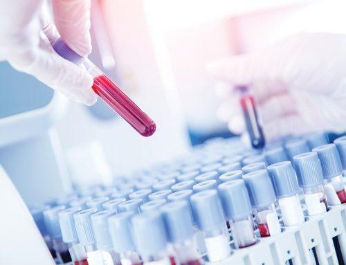 Do You Need an Antibody Test?